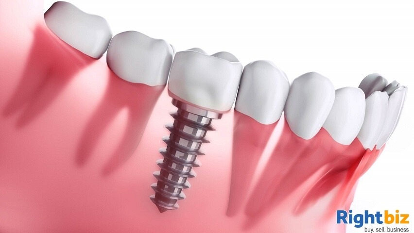 EXCLUSIVE DISTRIBUTOR for a GLOBAL DENTAL IMPLANT AND BONE GRAFT MATERIAL - Image 1